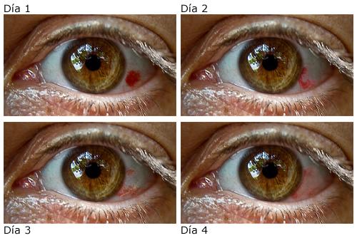 como se cura un derrame en los ojos