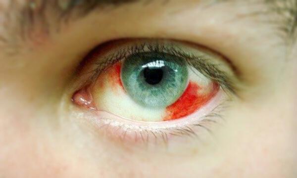 Derrames en los ojos