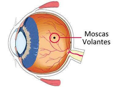 moscas volantes en el ojo